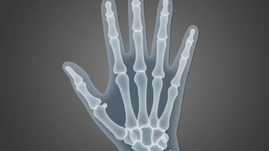 X-ray of a hand.
