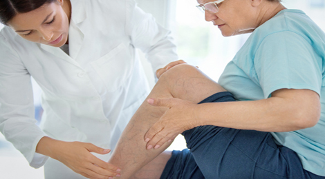A doctor checking out a woman's varicose veins.