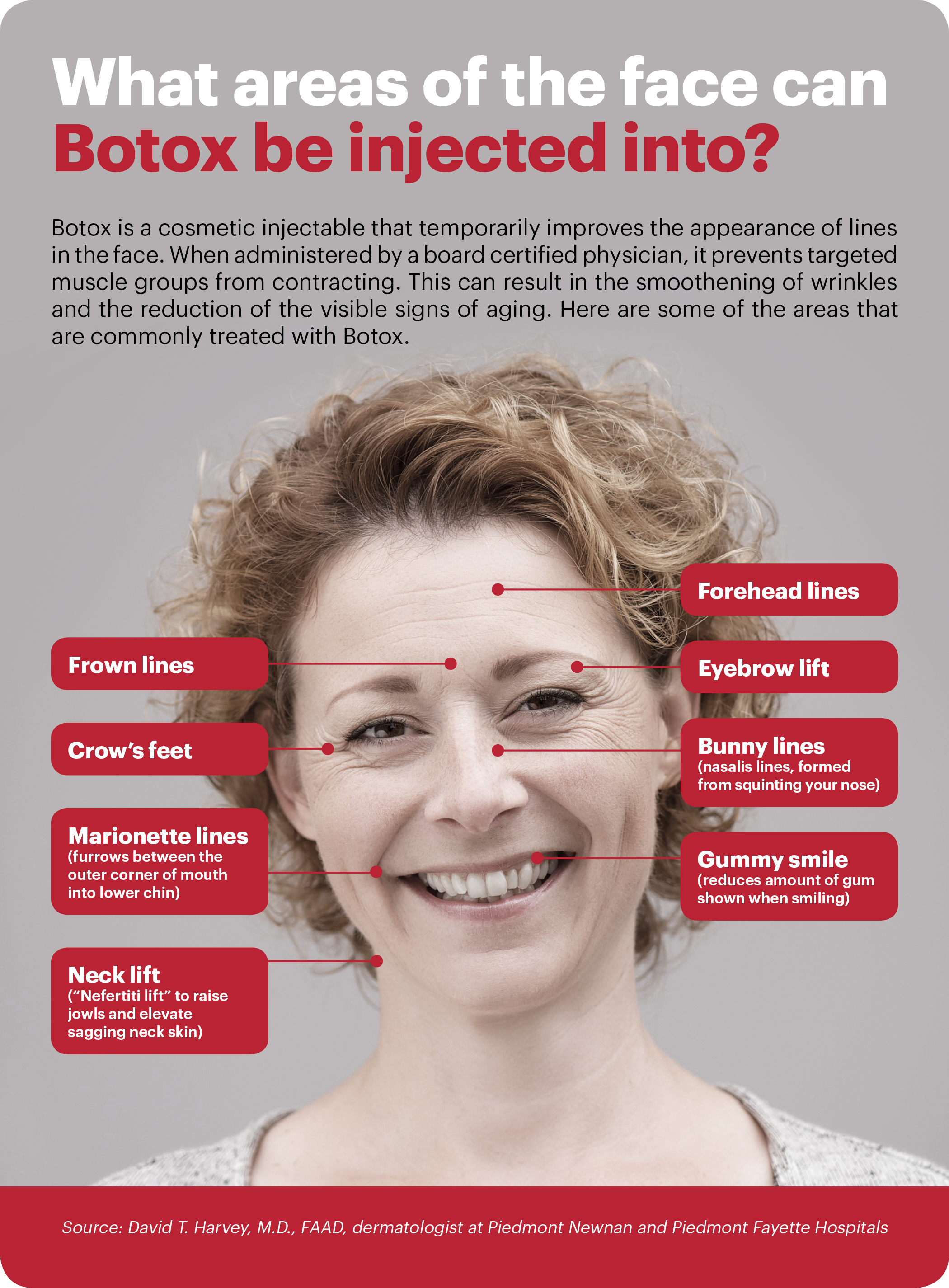 what areas of the face can botox be injected into