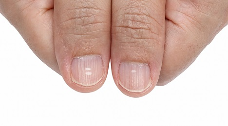 Do ridges on your fingernails indicate a thyroid problem?