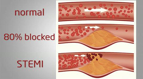 Stemi Heart Attack >> Why STEMI heart attacks are so deadly