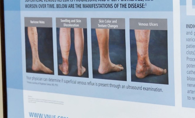d1a6214f8d348c Varicose veins: More than a cosmetic issue