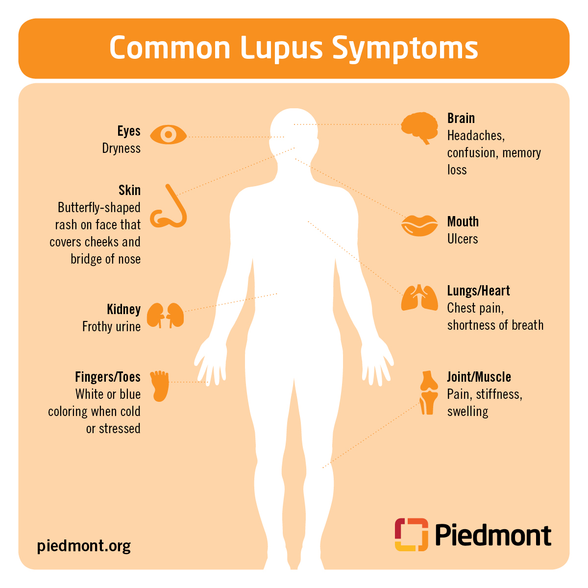 what is lupus? Multiple Sclerosis Diagram